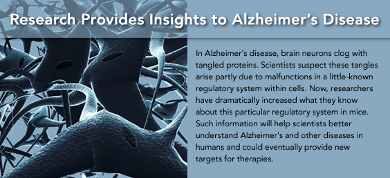 Research Provides Insights to Alzheimer's Disease