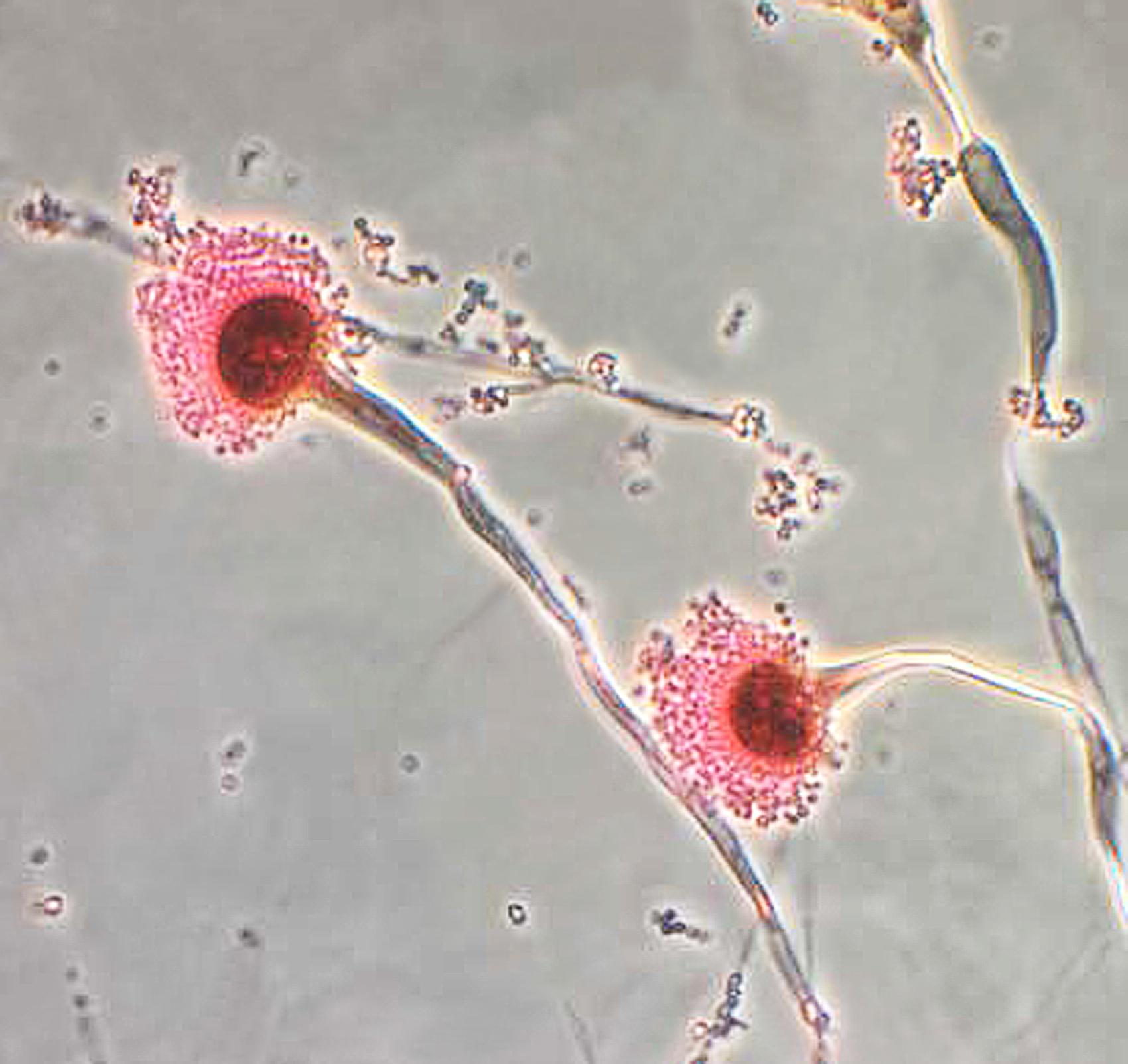 Image of A. fumigatus