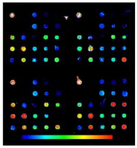 prototype of a microarray cancer chip