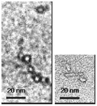 SENs on electron microscopic images