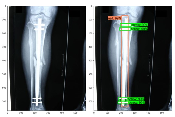 Two X-ray images, one with an implant identified using machine learning.