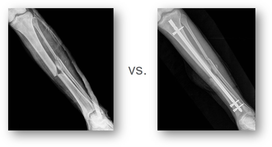 Pre-operation and post-operation X-rays