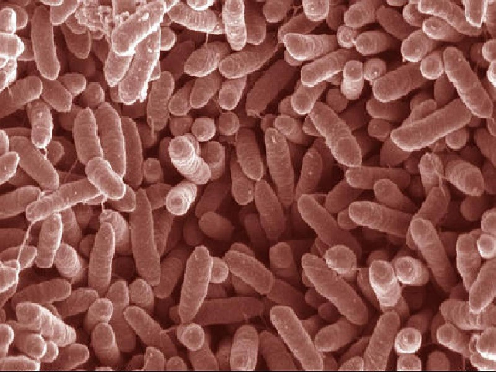 Microscope image of microbes